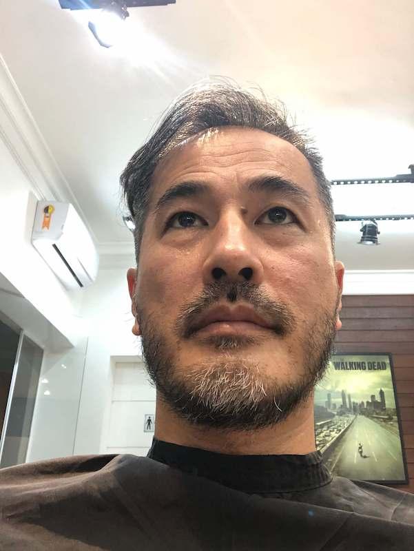 Barba Frontal - Antes