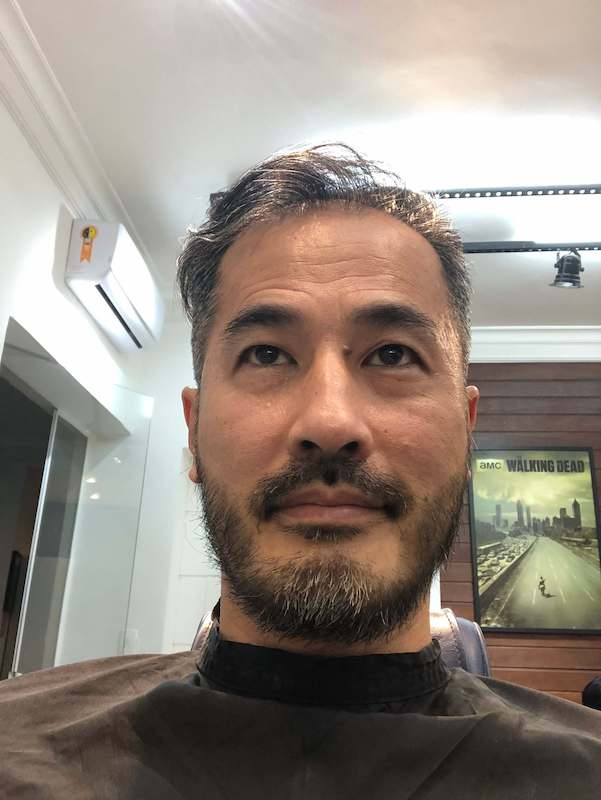 Barba Frontal - Depois