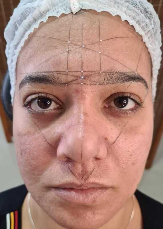 Micropigmentação - Mapeamento Facial