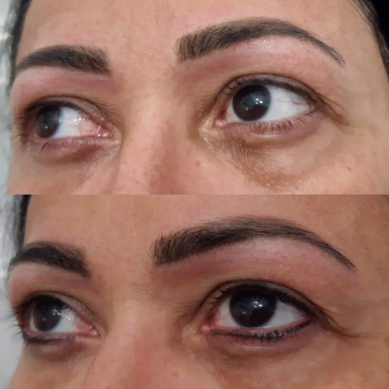 Micropigmentação de Contorno dos Olhos