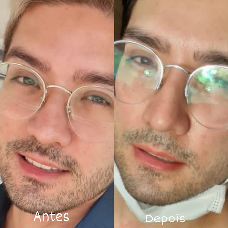 Micropigmentação Labial Masculina